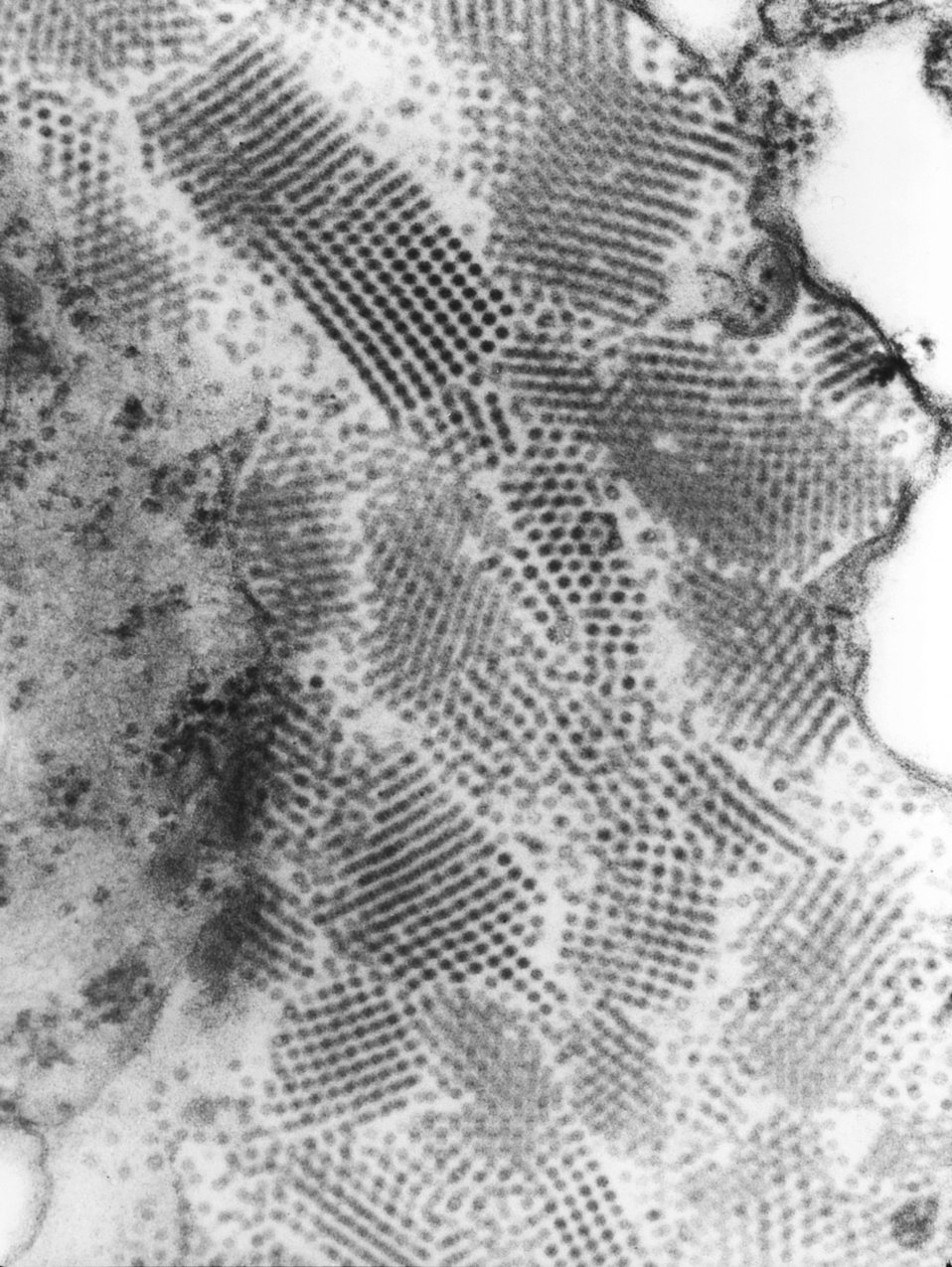 This transmission electron micrograph (TEM) revealed the presence of numbers of Nodamura virus virions.  At its core, the Nodamura virus pos