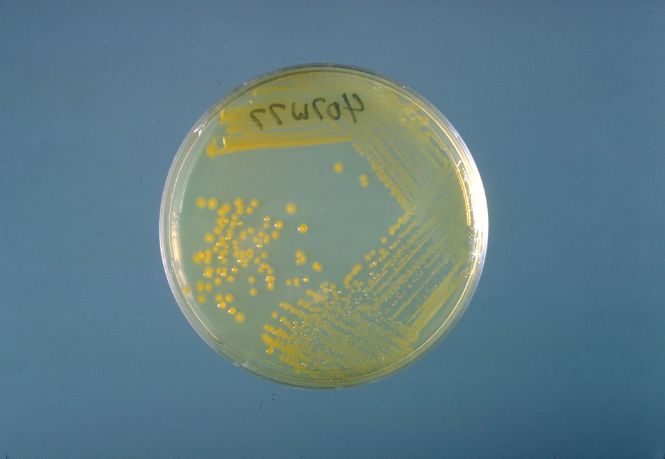 This is a trypticase soy agar plate culture of Enterobacter sakazakii after three days of growth at 25� C.
