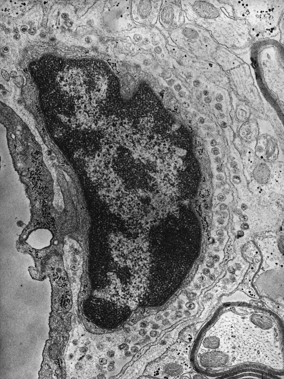 This negatively-stained transmission electron micrograph (TEM) revealed the presence of numerous intracellular Group C RNA tumor virus parti