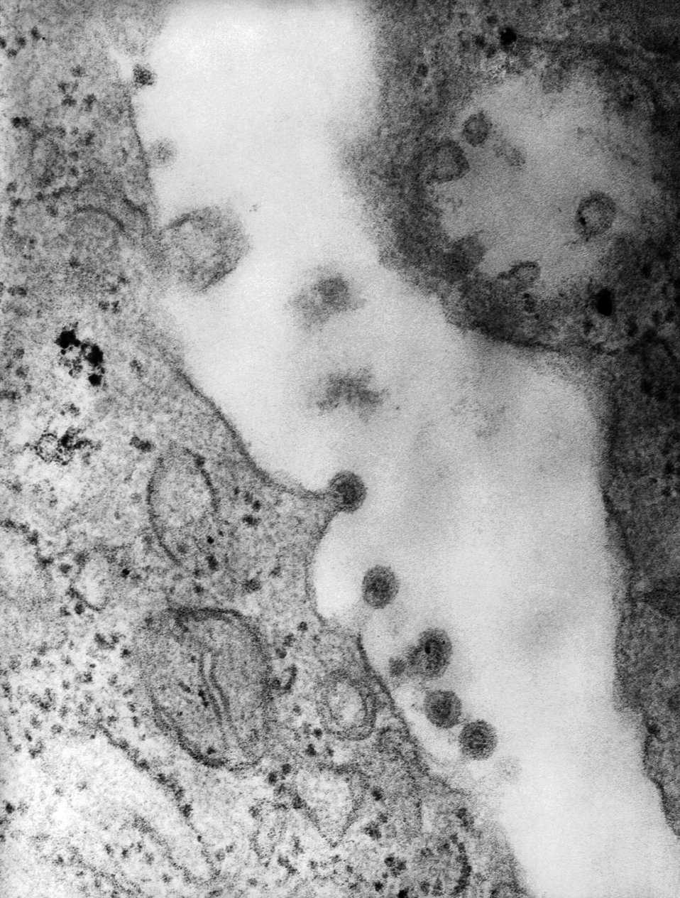 This negatively-stained transmission electron micrograph (TEM) revealed the presence of Rubella virus virions, as they were in the process o