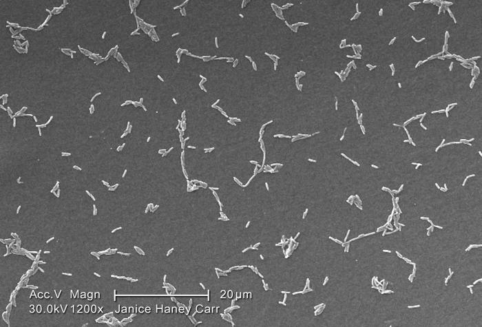 Under a moderate magnification of 1200X, this scanning electron micrograph (SEM) depicted a diffuse group of Gram-negative Legionella pneumo