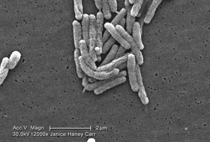 Under a high magnification of 12000X, this scanning electron micrograph (SEM) depicted a number of Gram-negative Legionella pneumophila bact