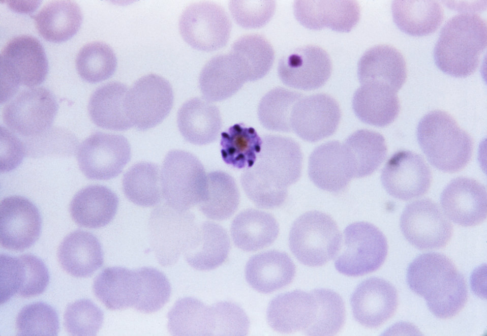This thin film Giemsa stained micrograph depicts an immature Plasmodium vivax schizont.