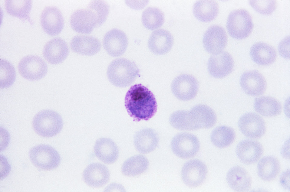 This thin film Giemsa stained micrograph depicts a mature Plasmodium ovale trophozoite.