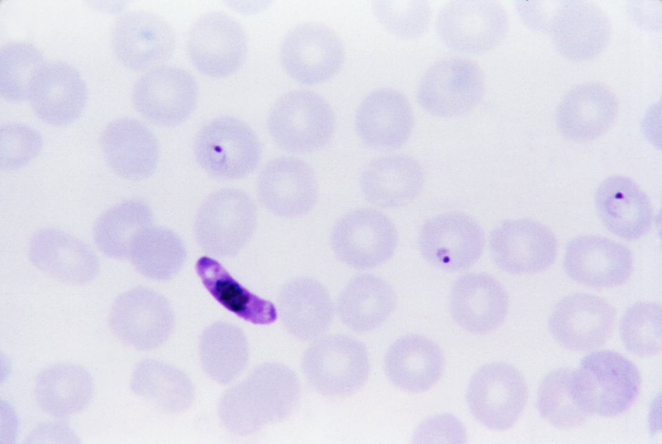 This thin film Giemsa stained micrograph shows a Plasmodium sp. macrogametocyte.