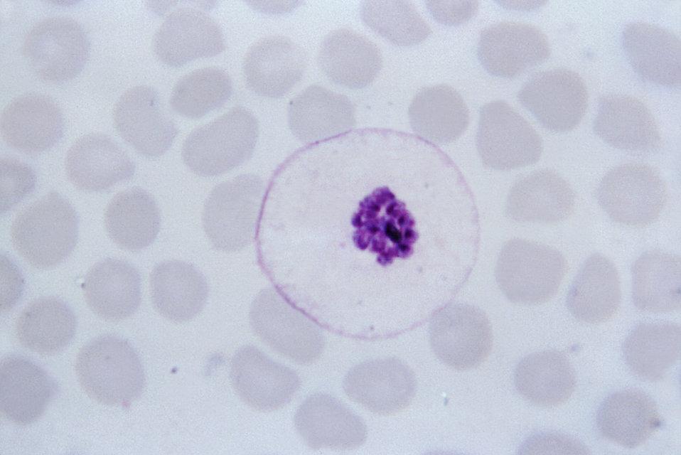 This thin film Giemsa stained micrograph depicts a mature Plasmodium malariae schizont.