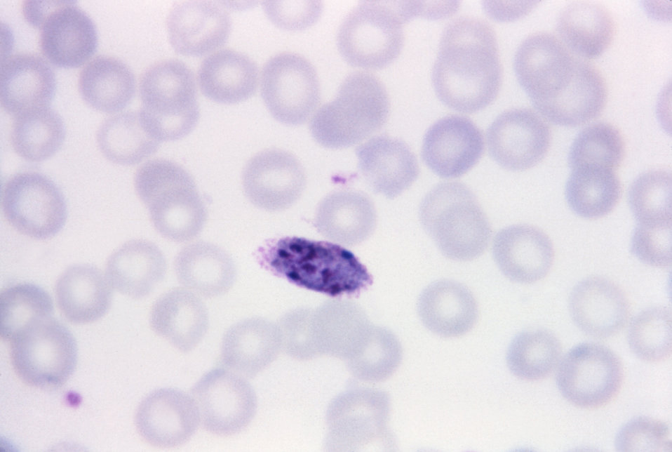 This thin film Giemsa stained micrograph depicts an older, though still immature Plasmodium ovale schizont.