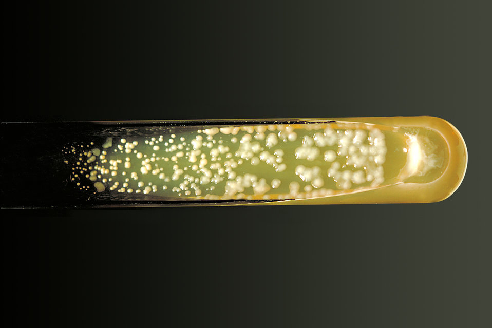 Pictured is a Sabouraud dextrose agar slant culture of the fungus Cryptococcus neoformans grown at 37�C.