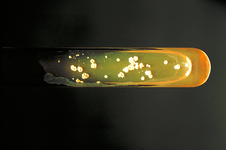 Pictured is a Sabouraud dextrose agar slant culture of the fungus Paracoccidioides brasiliensis grown at 37�C.