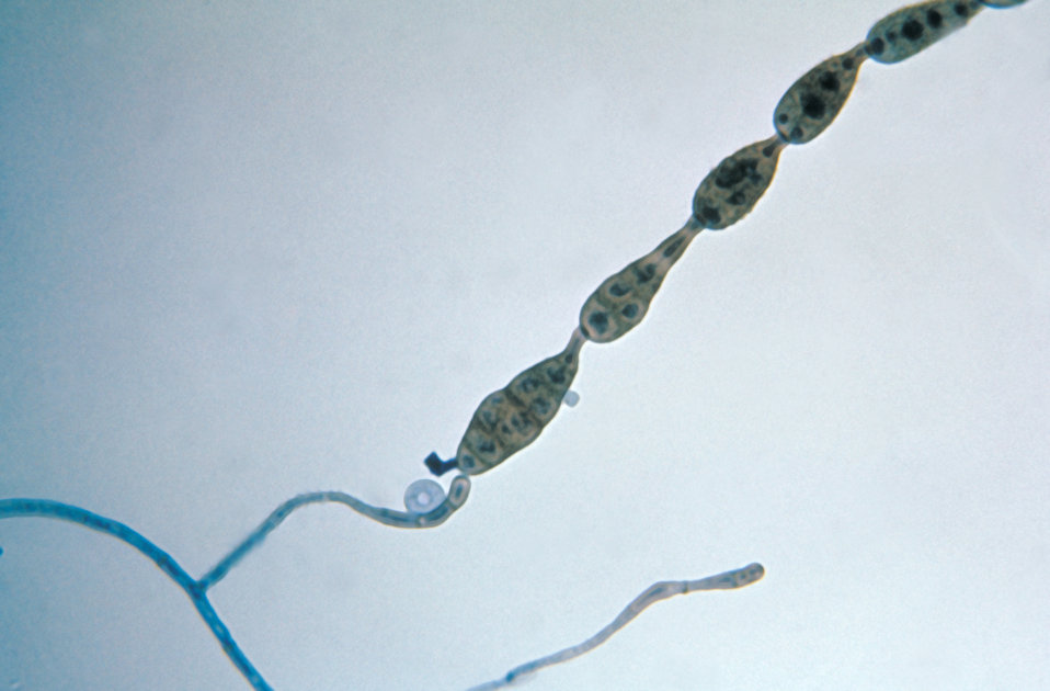 This photomicrograph shows a chain of conidia of a Alternaria sp. fungus, which can be a cause of phaeohyphomycosis.
