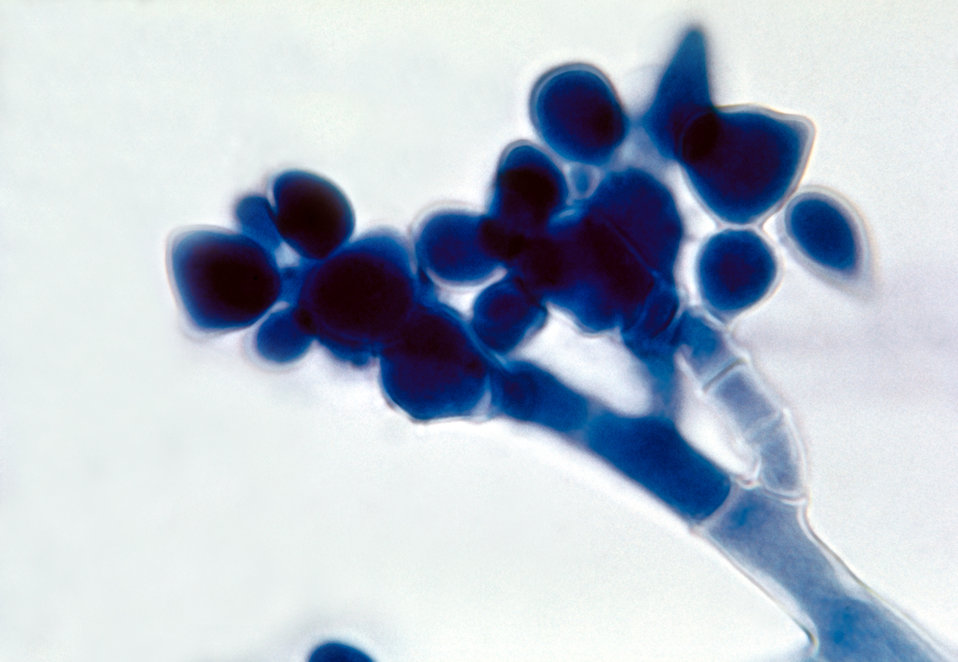 This photomicrograph shows a clusters of asexual spore-containing conidia of a Botrytis sp. fungus.