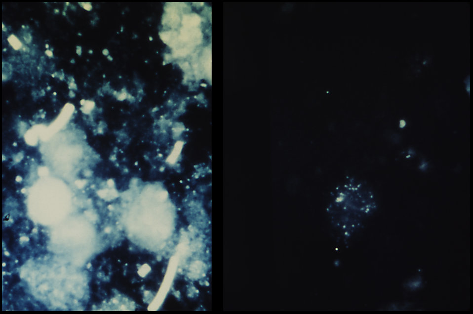 This is lymph node impression smear reveals B. anthracis on the left, with normal, non-infected tissue on the right.