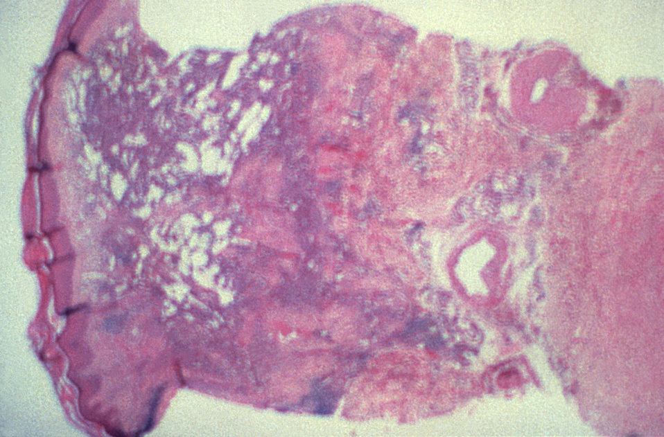 Under a low magnification, this photomicrograph depicts the histopathologic changes seen in human skin biopsy specimen due to Kaposi's sarco