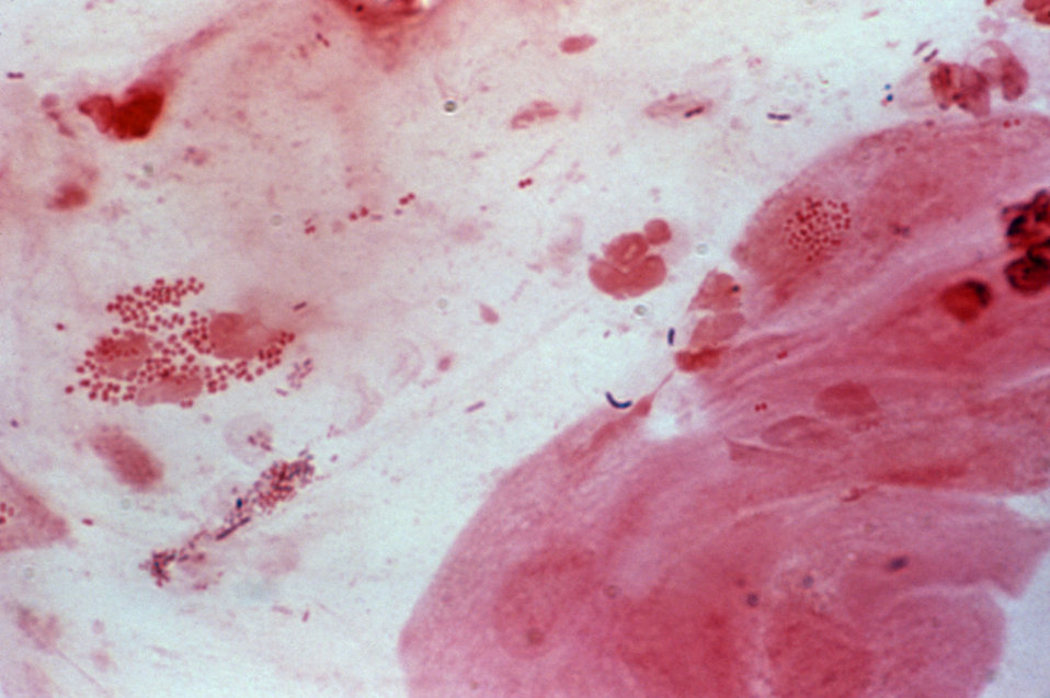 This photomicrograph is showing Neisseria gonorrhoeae in a cervical smear using the Gram-stain technique.