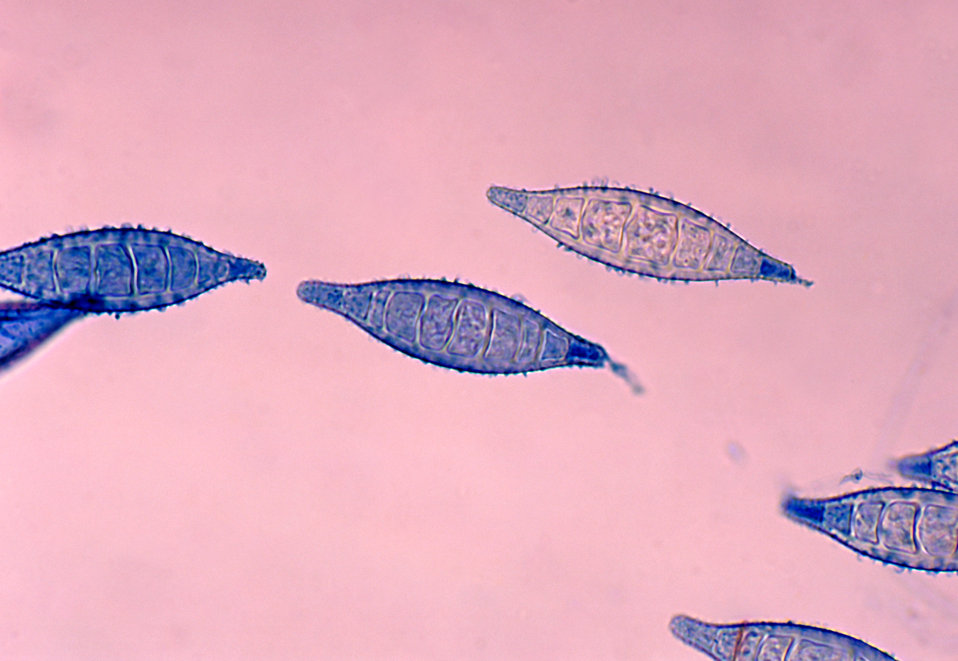 This photomicrograph shows a number of Arthroderma otae, formerly Nannizzia otae, fungal macroconidia.