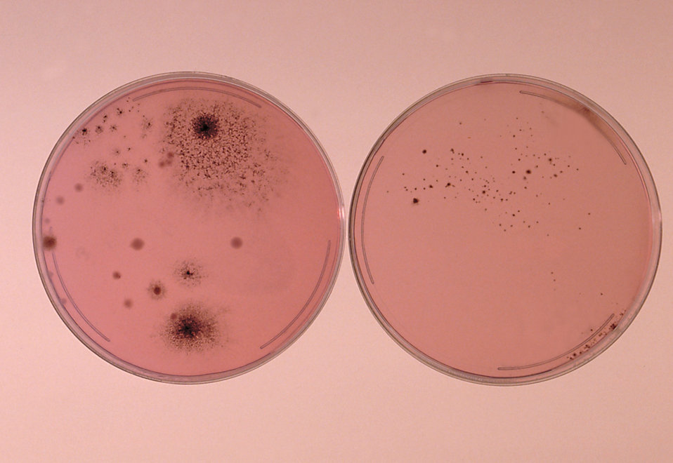 Here Smith's diagnostic medium plate culture of H. capsulatum shows growth despite the presence of contaminating molds.