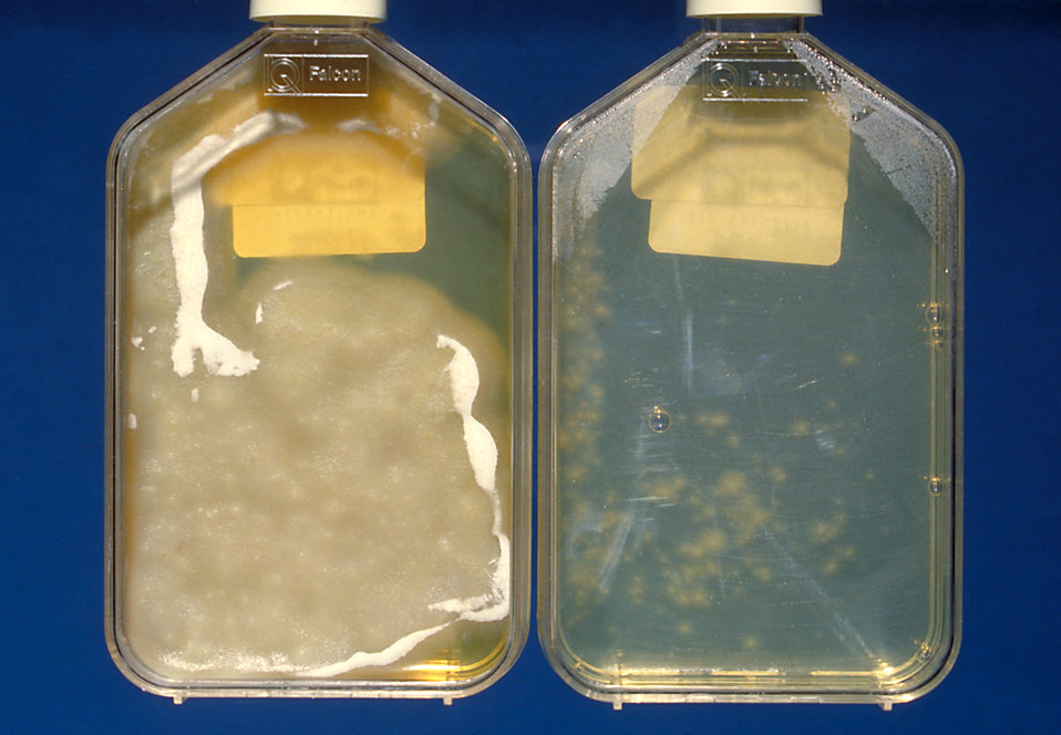 The left bottle Histoplasma capsulatum culture growth is shown at 8wks and the right bottle is shown at 3wks.