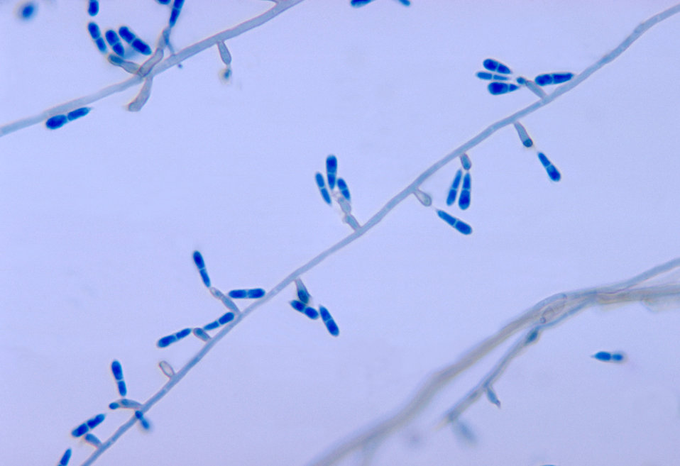 These are conidia on conidiophores of Ochroconis gallopavum, formerly Dactylaria gallopava, isolated from turkey poult brain tissue specimen