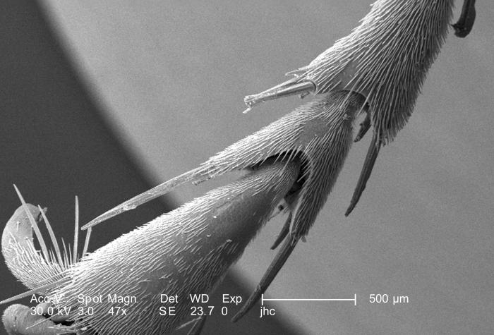 This scanning electron micrograph (SEM) is the first in a series of five PHIL images, 10106, 10107, 10108, 10109, and 10110, depicting the d