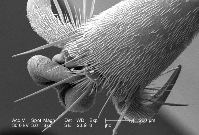 This scanning electron micrograph (SEM) is the second in a series of five PHIL images, 10106, 10107, 10108, 10109, and 10110, depicting the