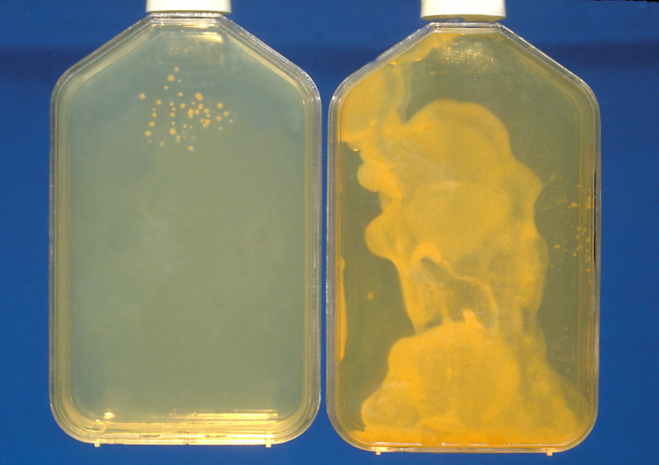 These were two differently concentrated sputum specimen cultures of Histoplasma capsulatum.