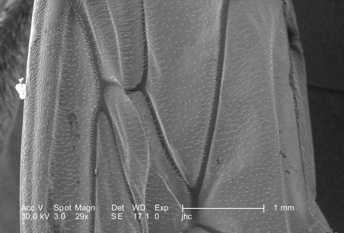 Under a low magnification of only 29X, this scanning electron micrograph (SEM) depicted some of the surface details found on one of the four