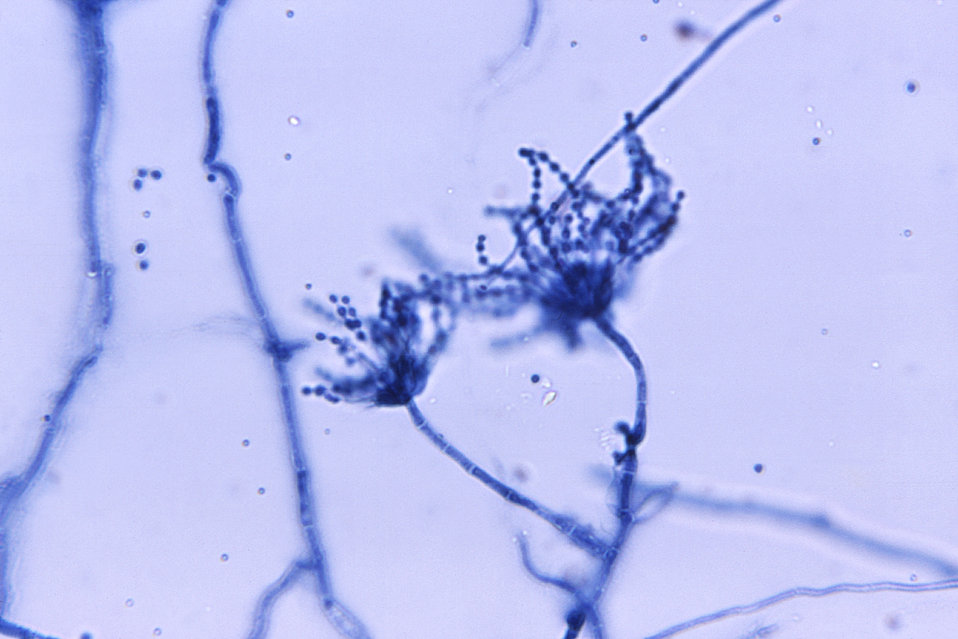 These are conidiophores with conidia of Penicillium marneffei that were isolated from a splenic abscess.