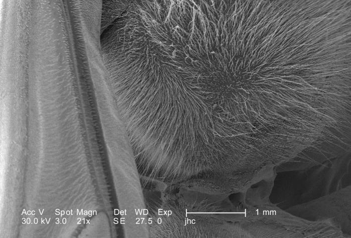 Still under a very low magnification of only 21X, but twice that of PHIL 10114, this scanning electron micrograph (SEM) depicted some of the