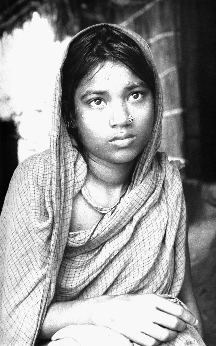 The skin of this young Bangladesh woman revealed the scarring that remained after having survived a case of smallpox. The characteristic mac