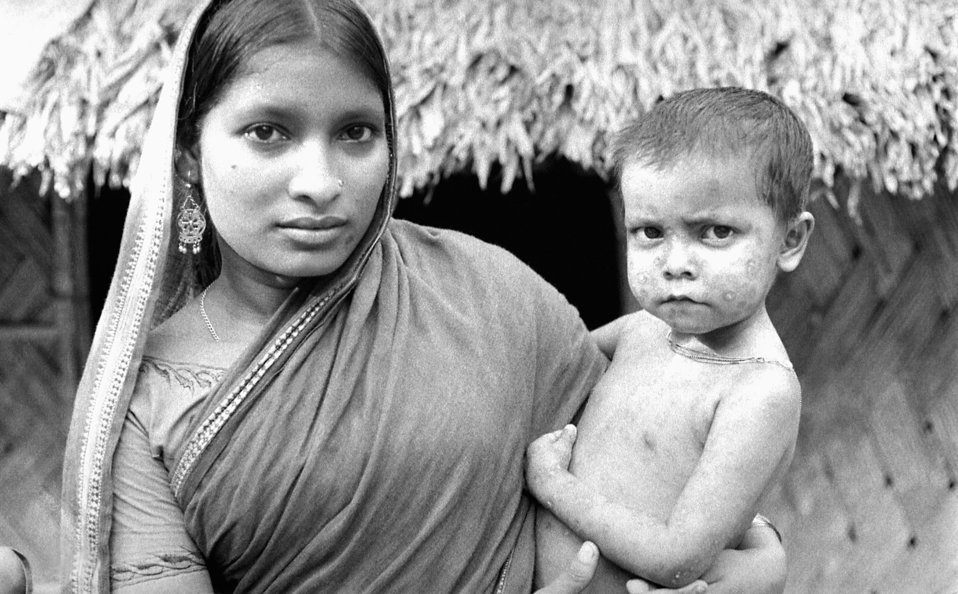 This mother was photographed as she held her child who bore the scars of having been a smallpox survivor. The distribution pattern of his sc