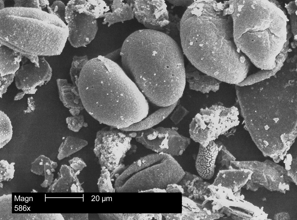 This electron micrograph depicts a morphologic array of pollen granules found on the CDC campus in Atlanta, GA, in spring, 2004.