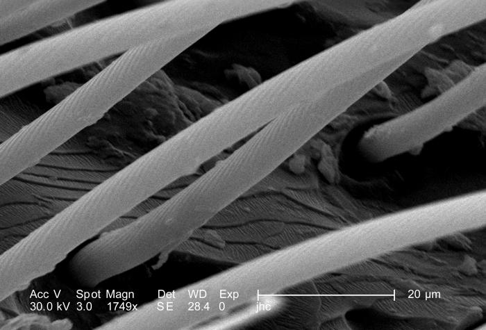 Under a high magnification of 1749X, 4X that of 10117, this scanning electron micrograph (SEM) depicted some of the morphologic details foun