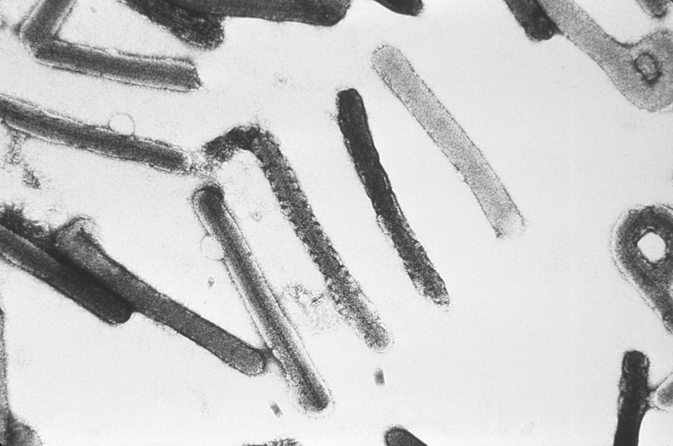 This electron micrograph depicts a number of Marburg virions responsible for causing Marburg Hemorrhagic Fever.