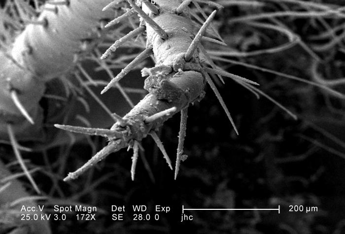 Under a relatively-low magnification of 172X, this scanning electron micrograph (SEM) revealed the ultrastructural features found at the dis