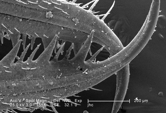 Under a relatively-low magnification of 155X, twice that of PHIL 11804, this scanning electron micrograph (SEM) revealed the ultrastructural