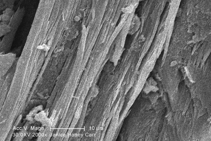 Under a high magnification of 2000X, this scanning electron micrograph (SEM) revealed some of the microcrystalline ultrastructure exhibited