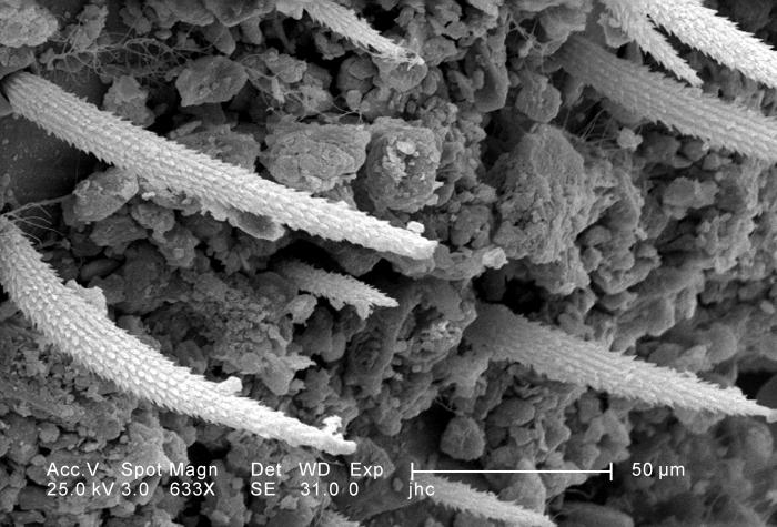 Under a moderately-high magnification of 633X, approximately four times that of PHIL 11807, this scanning electron micrograph (SEM) revealed