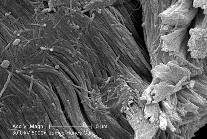 Under a high magnification of 5000X, this scanning electron micrograph (SEM) revealed some of the microcrystalline ultrastructure exhibited