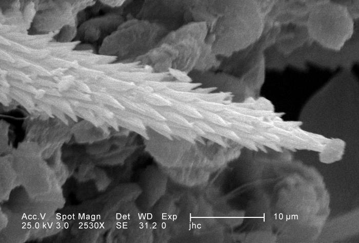 Under a moderately-high magnification of 2530X, approximately four times that of PHIL 11808, this scanning electron micrograph (SEM) reveale