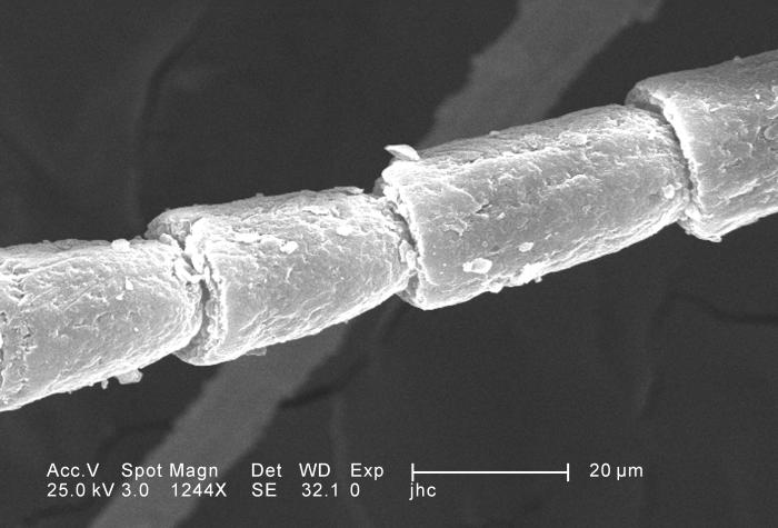 Under a moderately-high magnification of 1244X, which is 4X greater than PHIL 11810, this scanning electron micrograph (SEM) depicted some o