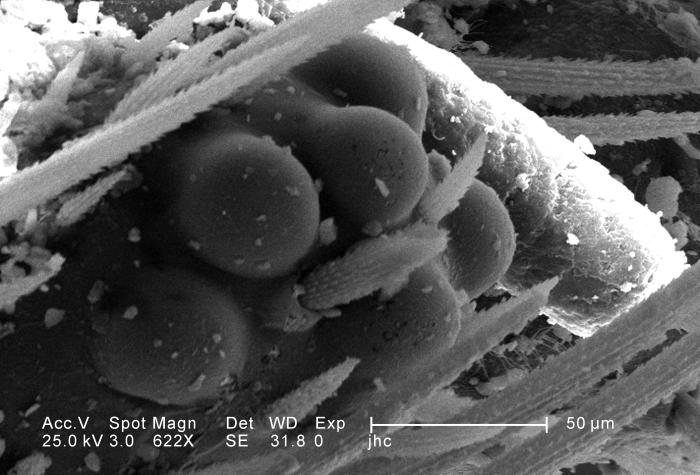 Under a magnification of 622X, this scanning electron micrograph (SEM) depicted some of the ultrastructural morphology displayed on the head