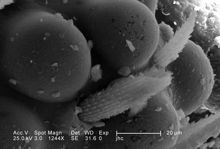 Under a magnification of 1244X, this scanning electron micrograph (SEM) depicted some of the ultrastructural morphology displayed on the hea