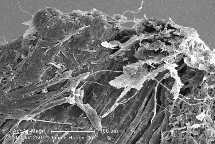 Under a moderate magnification of 250X, this scanning electron micrograph (SEM) revealed some of the microcrystalline ultrastructure exhibit
