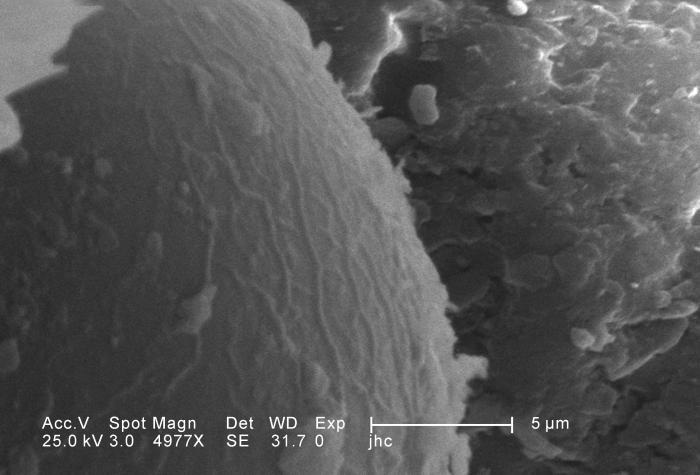 Under a high magnification of 4977X, this scanning electron micrograph (SEM) depicted some of the ultrastructural morphology displayed on th