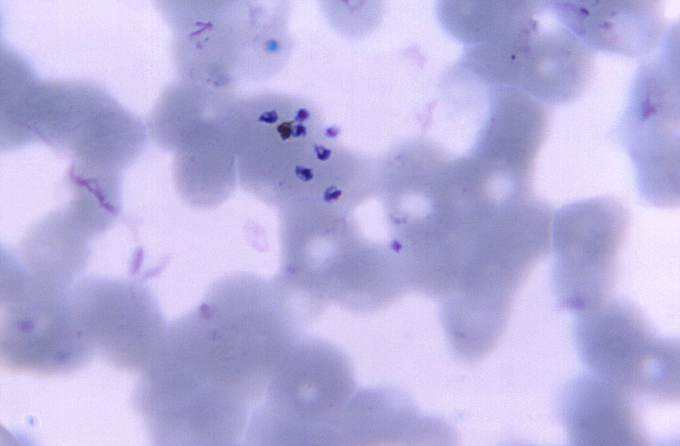 Magnified 1125X, this thin film photomicrograph of a blood smear, revealed the presence of a number of Plasmodium vivax 'free' merozoites, w