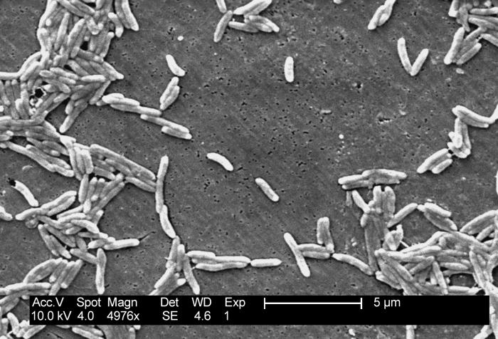 This scanning electron micrograph depicts a grouping of Gram-negative Campylobacter fetus bacteria, magnified 4,976x.