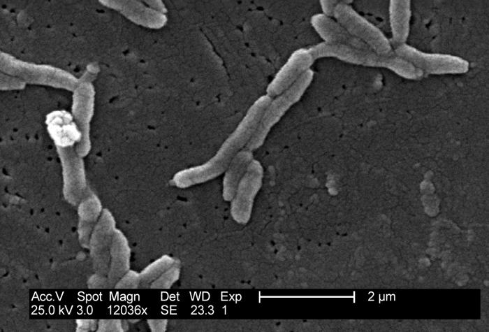 This scanning electron micrograph depicts a grouping of Gram-negative Flexispira rappini bacteria, magnified 12,036x.