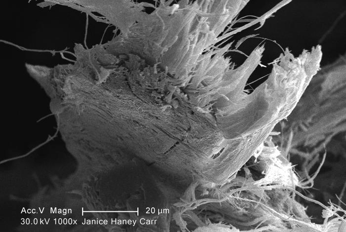 Under a moderate magnification of 1000X, this scanning electron micrograph (SEM) revealed some of the microcrystalline ultrastructure exhibi