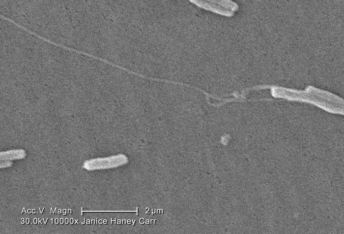 Under a very very high magnification of 10000X, this scanning electron micrograph (SEM) depicted a number of Gram-negative Legionella pneumo