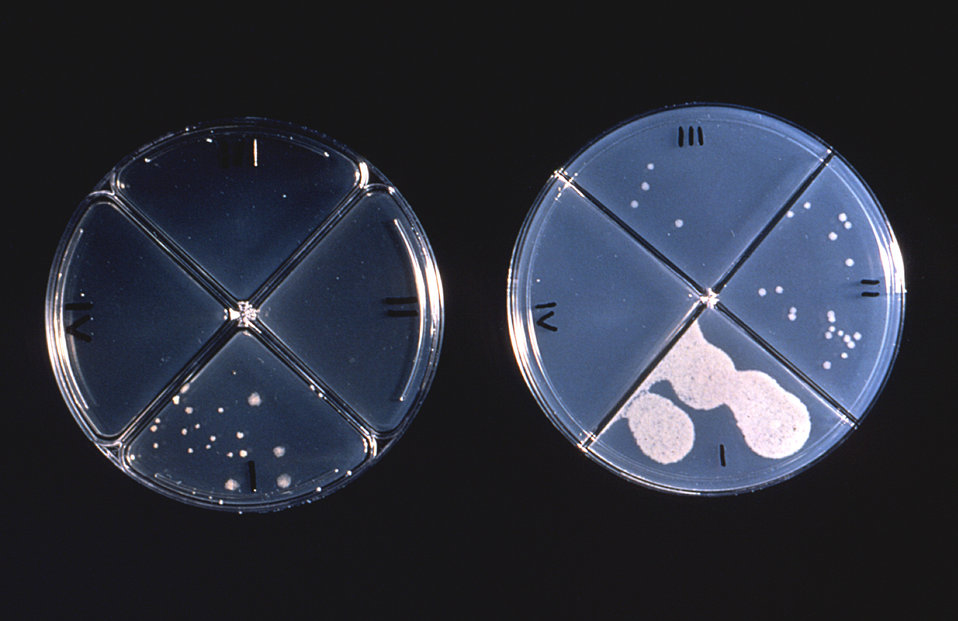 These thin agar culture plates reveal the results of a drug susceptibility test on Mycobacterium tuberculosis bacteria.